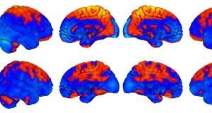 Як змінюється мозок людини після перебування в космосі