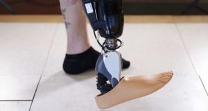 Протез ноги, управляемый силой мысли, от компании Ossur