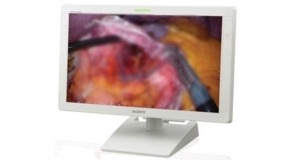 OLED-технологии для медицины от Sony