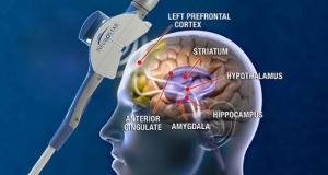 Магнитоэлектрическая стимуляции мозга