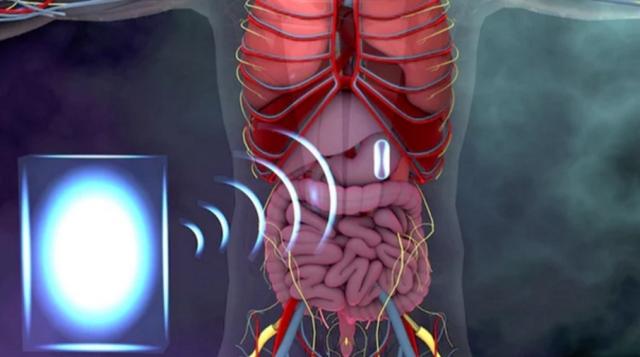 Ендоскопічні капсули отримають бездротове живлення