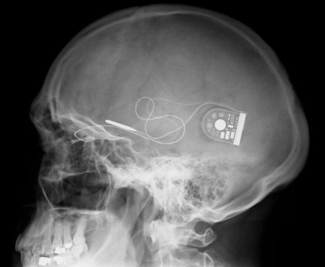 Военные США начали разработку мозговых имплантов, способных восстановить память и навыки