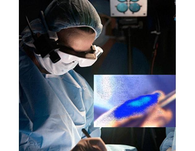 Протестированы умные очки, позволяющие четко видеть раковые клетки