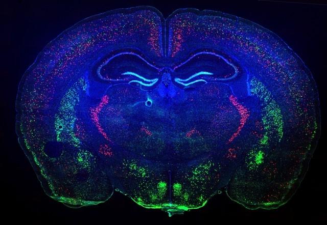 Миллионер Пол Аллен учредил новый медицинский институт, чтобы изучать работу живых клеток