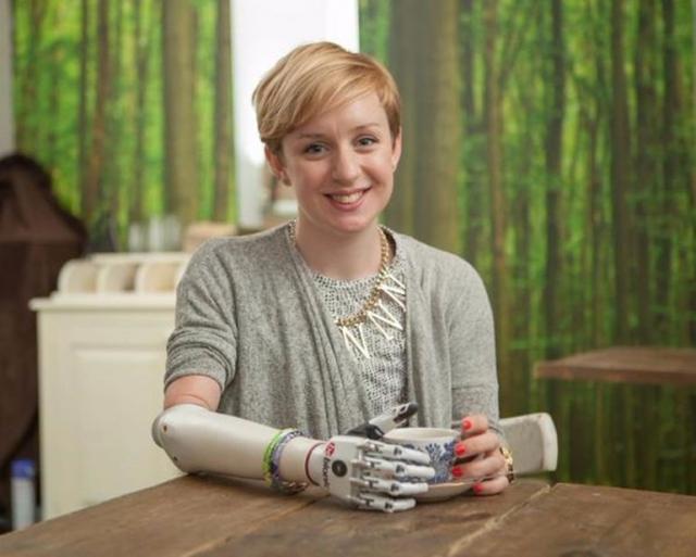 Первая бионическая рука для женщин и подростков