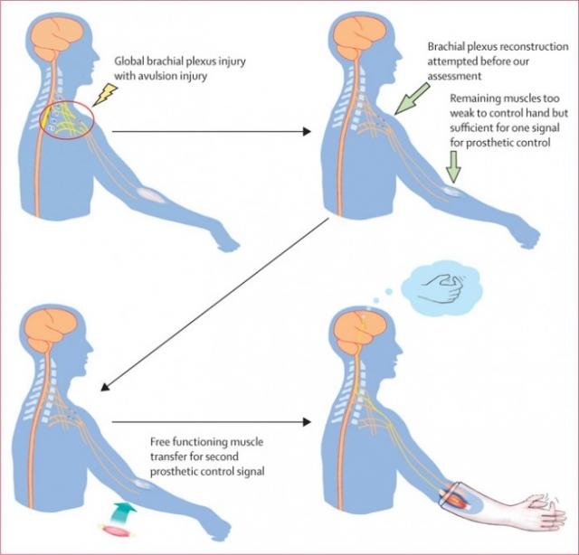 Протезированная рука использует альтернативный метод мысленного контроля